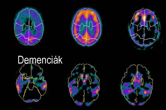 Forrás: dr. Borbély Katalin, Országos Onkológiai Intézet
