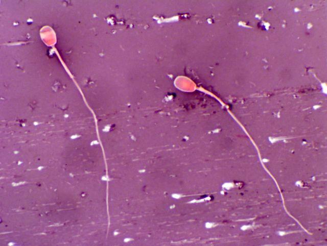 vremya-zhizni-spermatozoida-na-odezhde
